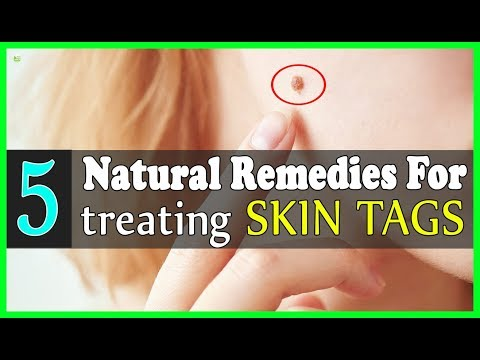 5 Effective Natural Remedies For Treating Skin Tags - How To Get Rid Of Skin Tags?