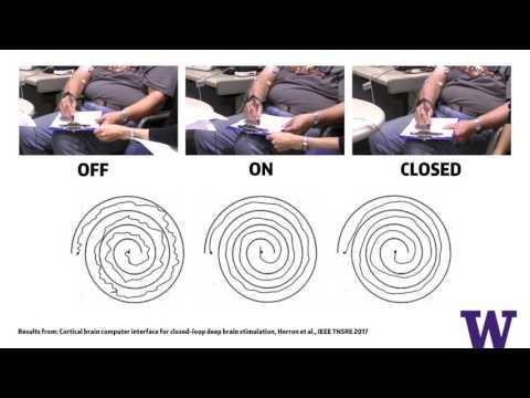 Deep brain stimulation relieves tremor symptoms