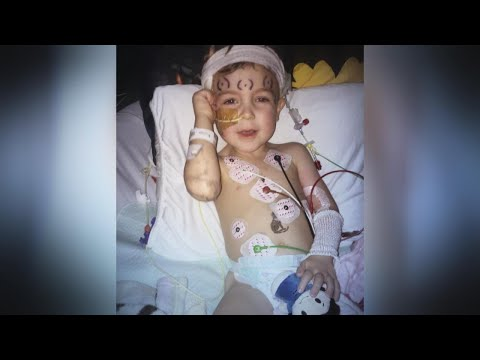 3-Year-Old's Brain Tumor Scare