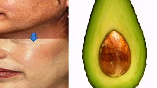 Privative beauty homemade Avocado mask can help smoother face look younger |PICH
