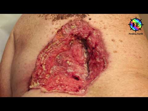 Skin Cancer - Symptom, Causes & Diagnosis (Finding Earth)