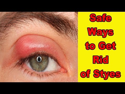 HOW TO GET RID OF A STYE!! 7 EASY AND SAFE WAYS TO GET RID OF STYES FAST AT HOME!! FOOTLOOSE!