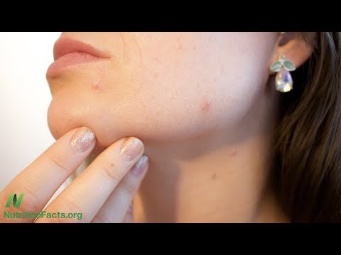 Natural Treatment for Acne and Fungal Infections