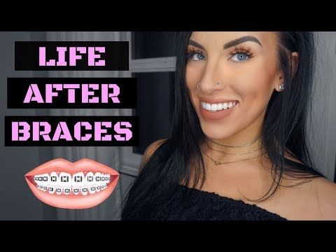 WHAT TO EXPECT WHEN YOUR BRACES COME OFF!   Chels Nichole