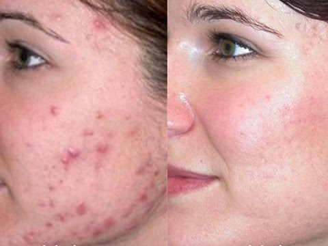 How to Get Rid of Acne Overnight at Home Naturally (Proven Methods)
