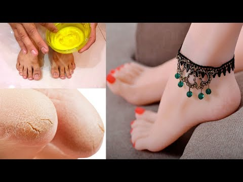 Get Beautiful Feet (Pedicure) Cracked Heels Removal Treatment with Home Remedies Tips Urdu Hindi