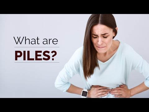 What are Piles | treatment | cure | remedies