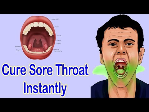 How To Get Rid Of Tonsillitis And Sore Throat Naturally  - Get Relief In 4 Hours