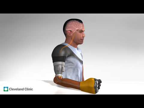 Prosthetic Function Advances with First Demonstration of Illusory Movement Perception in Amputees