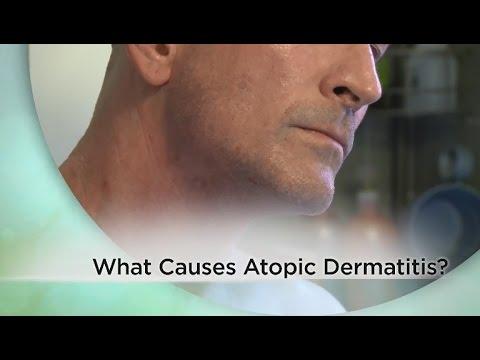 What causes atopic dermatitis?