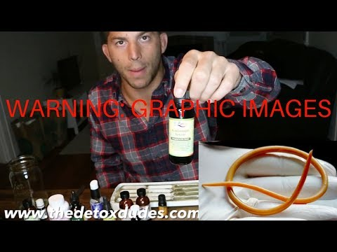 How To Kill Parasites Naturally (Rectal Suppositories)