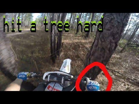 Broke my pinky [ wheelies & fast trail riding ]