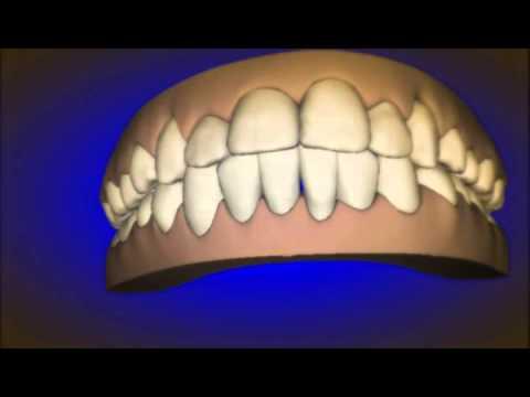 Public Aid (All Kids) Orthodontic Braces Zion IL