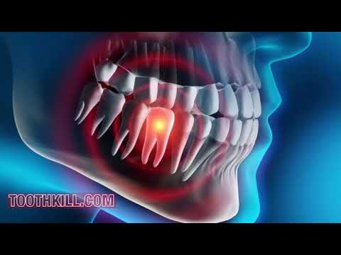 How dangerous Is a Abscess Tooth
