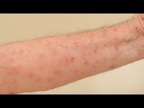 How to eliminate scabies quickly and naturally