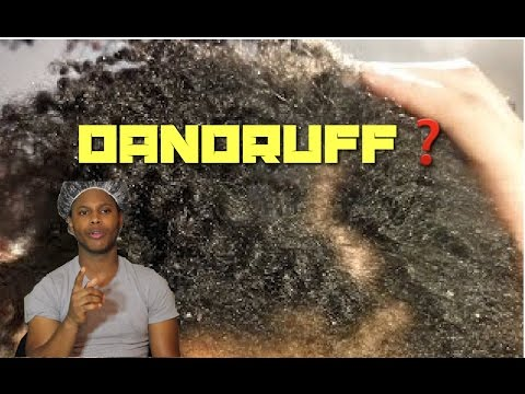 Afro Journey | How To Get Rid Of Dandruff