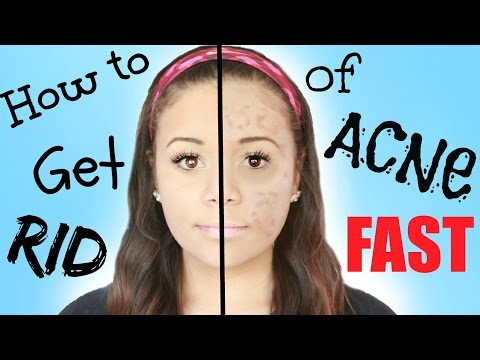 DIY How to Get Rid of Acne FAST! | Krazyrayray
