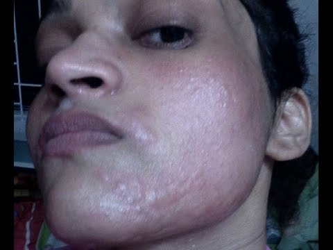 How I got rid of my skin allergy - Remedy to get rid of Facial Hair….
