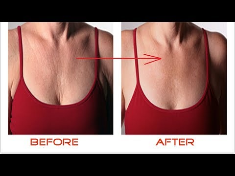 How to Get Rid of Chest and Neck Wrinkles Naturally