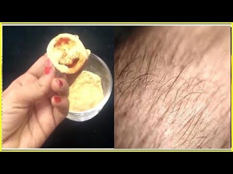 10 నిముషాలు అక్కడ ఉండే వెంట్రుకలు శాశ్వతంగా తొలగిపోతాయి    Permanently Remove all Unwanted Hair