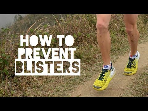 5 Tips to Stay Blister Free When Running | How to Prevent Blisters