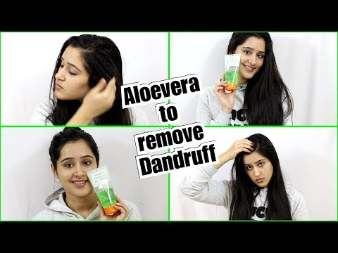 Remove DANDRUFF Using ALOEVERA GEL - 2 Step process to remove dandruff