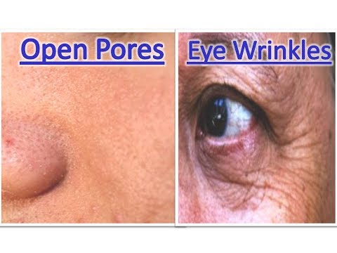 Open Pores Eye Wrinkles problem totally finish by this tips