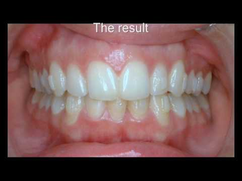 Invisalign before and after with simulation