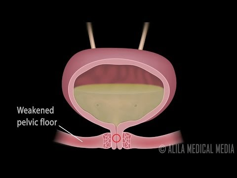 Stress Urinary Incontinence in Women, Animation