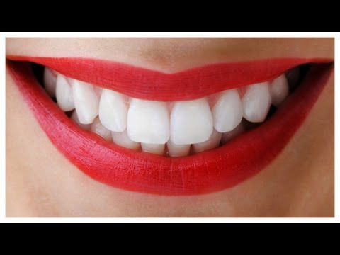 How To Whiten Teeth in 5 minutes at Home | WORKS 100%