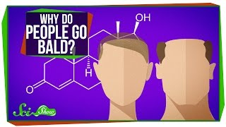 Download Why Do People Go Bald? Video