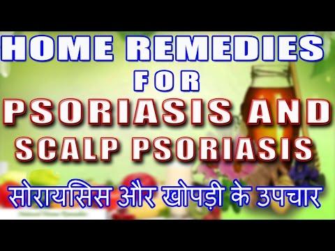 Home Remedies For Psoriasis & Scalp Psoriasis II   सोरायसिस & खोपड़ी सोरायसिस -उपचार II