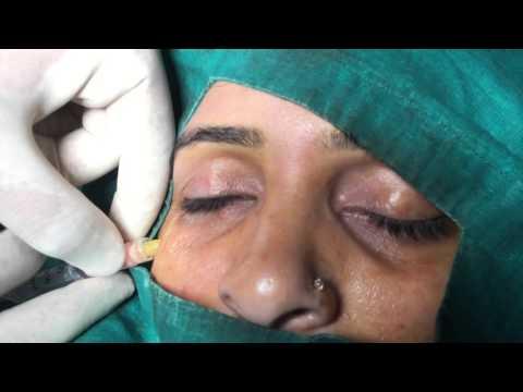 Nano Fat Injection for Under Eye Dark Circles
