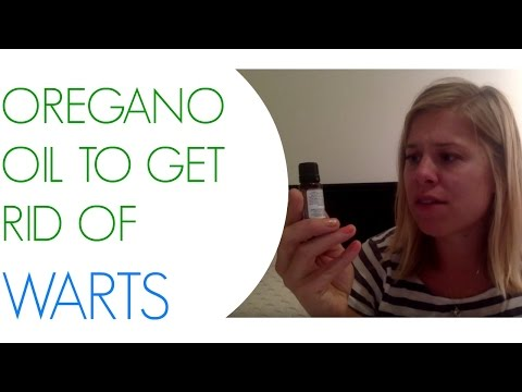 Warts Are Gross! Get Rid of Them with Oregano Oil :) Hooray for Natural Remedies!
