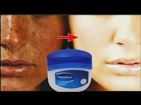 Apply 1 Night, Remove Black Spots and get Wake up with FAIR, SPOTLESS, GLOWING SKIN  ll NGWorld