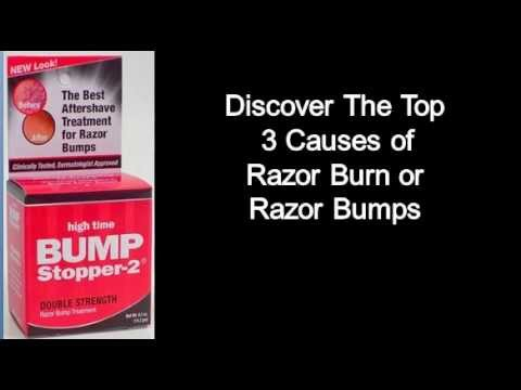 How To Prevent Razor Burn & Razor Bumps On Your Neck - 3 Tips