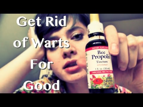 How To Get Rid of Warts - A Natural CHEAP Solution (Bee Propolis)