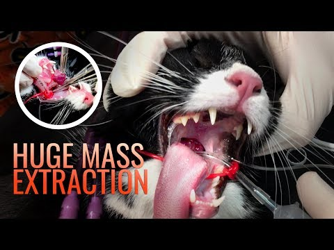Huge Mass Removal in Cat Throat