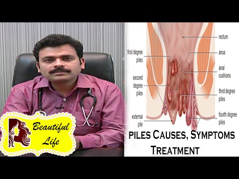Piles Causes, Symptoms Treatment In Telugu | Dr Ravi Kiran M.D | Studio One