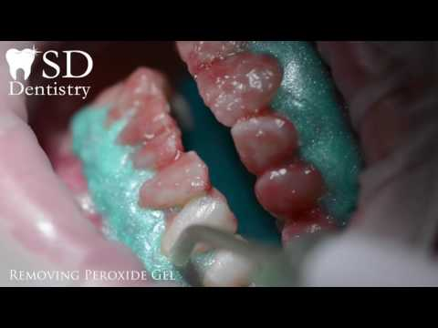 Office Dental Whitening Kit (Opalescence 40%)
