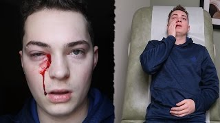 SOMETHING WENT HORRIBLY WRONG WITH MY EYE!