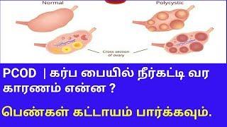 PCOD Problem |karpa pai neerkatti | Neerkatti karaya