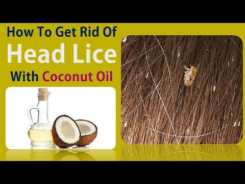How To Get Rid Of Head Lice - Stop Lice With Coconut Oil