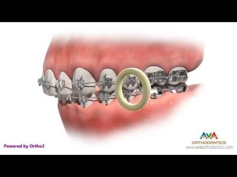 Orthodontic Rubber Bands - If Not Worn As Instructed