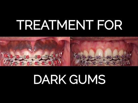 Gum Bleaching Procedure for Dark Gums (NEW 2018)