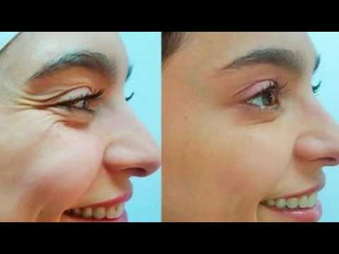 She Removed All Wrinkles Using This Homemade Cream Only For 1 Week Recipe !