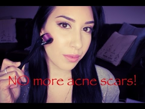 How To Get Rid Of Acne Scarring AT HOME! Before + After Pics + DEMO (Banish Acne Scars Review)