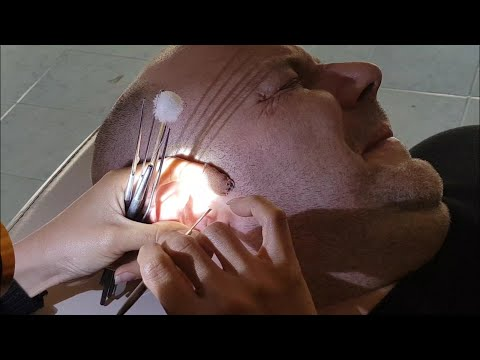 Amazing Ear Cleaning Vietnam Style in Laos