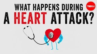 What happens during a heart attack? - Krishna Sudhir