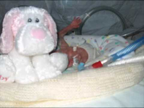 premature baby bailey 1lb 4oz